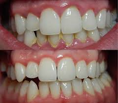 Red puffy gums